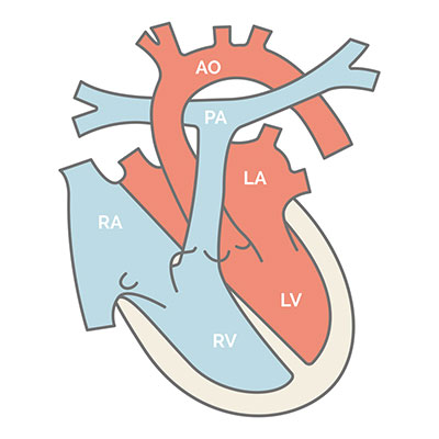 Normales Herz