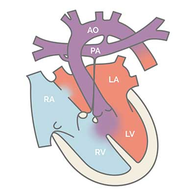 single_ventricle